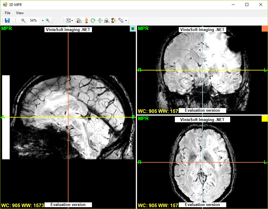 Dicom Viewer Demo